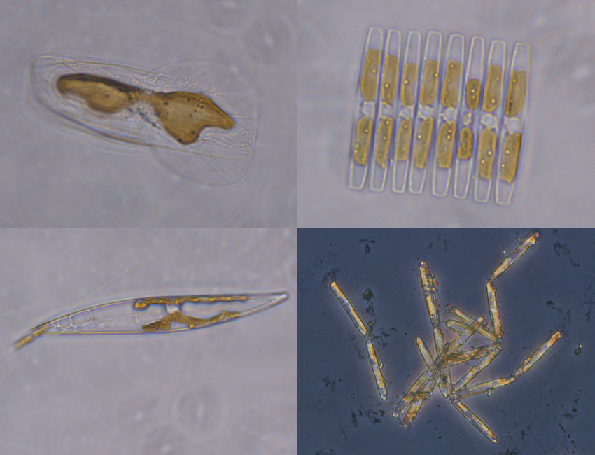 Examples of the microscopic plants found within sea ice. Photos: © Vanessa Pitusi.