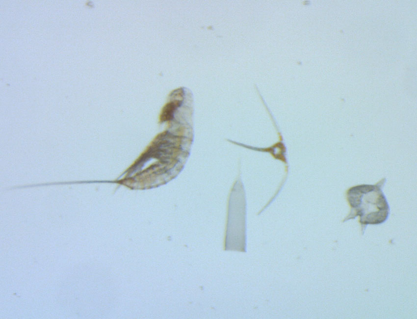 """Especially small animals can be difficult to work with in the traditional way. Together with large single-celled protists, we find one of the smallest, but most numerous copepods in the southern Barents Sea - Microsetella norvegica (to the left). Protists are a common term used for single-celled """"eukaryotic"""" organisms, which - in contrast to prokaryotes - have a nucleus and organelles (e.g. mitochondria or chloroplasts). Photo: Snorre Flo/UNIS."""